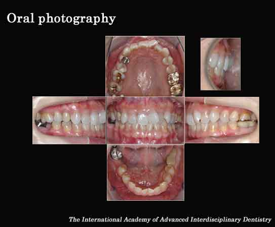 Oral Photography